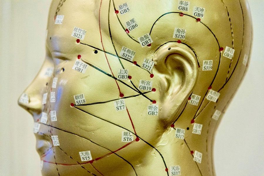 Akupunkturpunkte Kopf