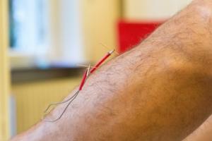 Elektrische Stimulation im Akupunkturzentrum Frankfurt