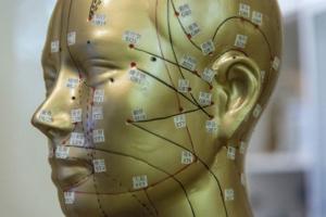 Schädelakupunktur Akupunkturpunkte